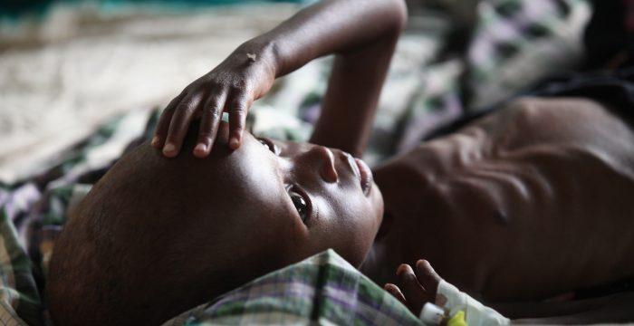 Fome ainda afeta 800 milhões de pessoas no mundo
